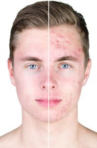 pickelige Haut; Unreine Haut