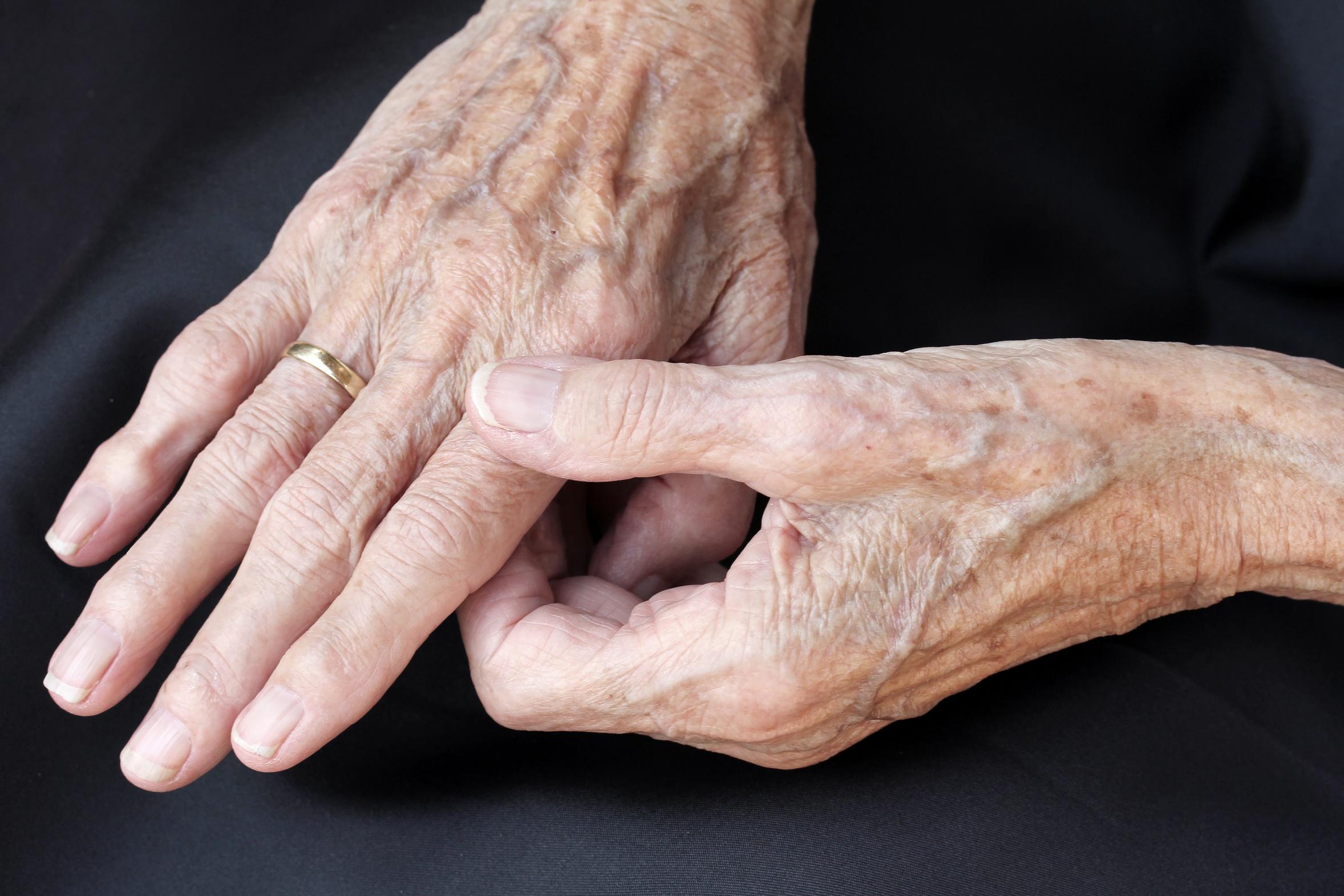 Altersflecken; Pigmentstörungen; UV-Schutz
