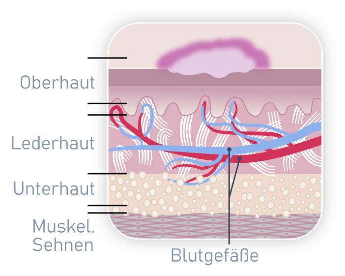 Atrophie Narbe, Narben, Narbenpflege