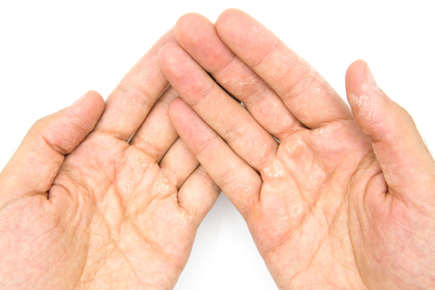Handcreme - Handserum -raue Hände