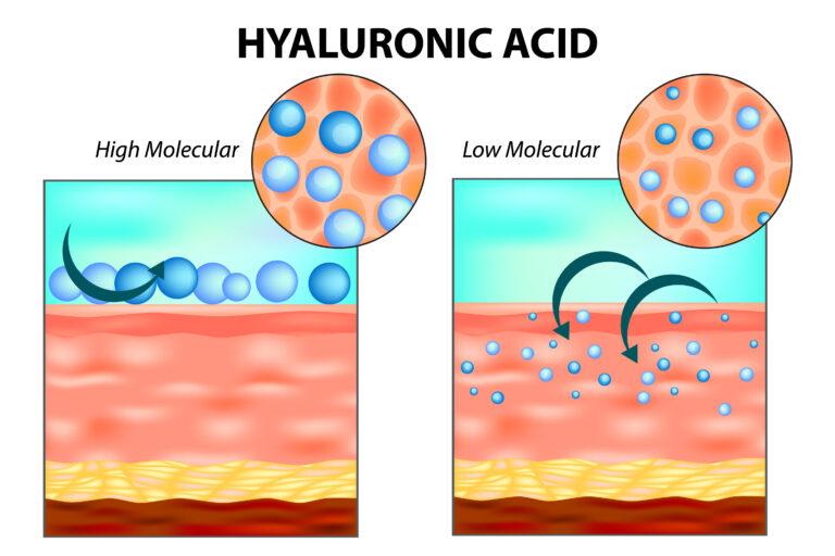 Sodium Hyaluronate; Oligo Hyaluronsäure