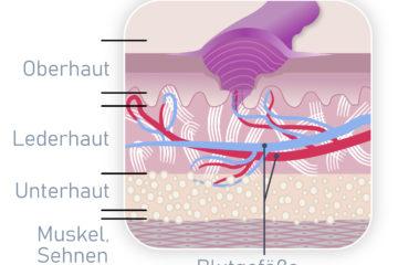 Narbenpflege, Narbe, Narbenkeloid